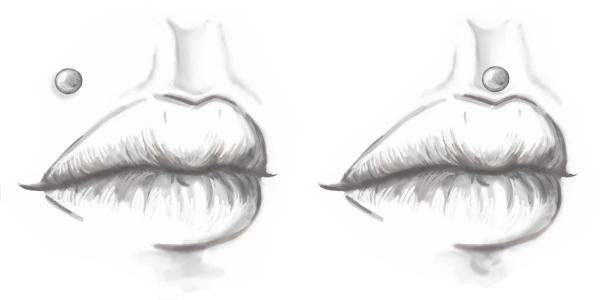 Monroe Madonna Medusa Philtrum lippiercing - Afbeelding van All Over Piercings